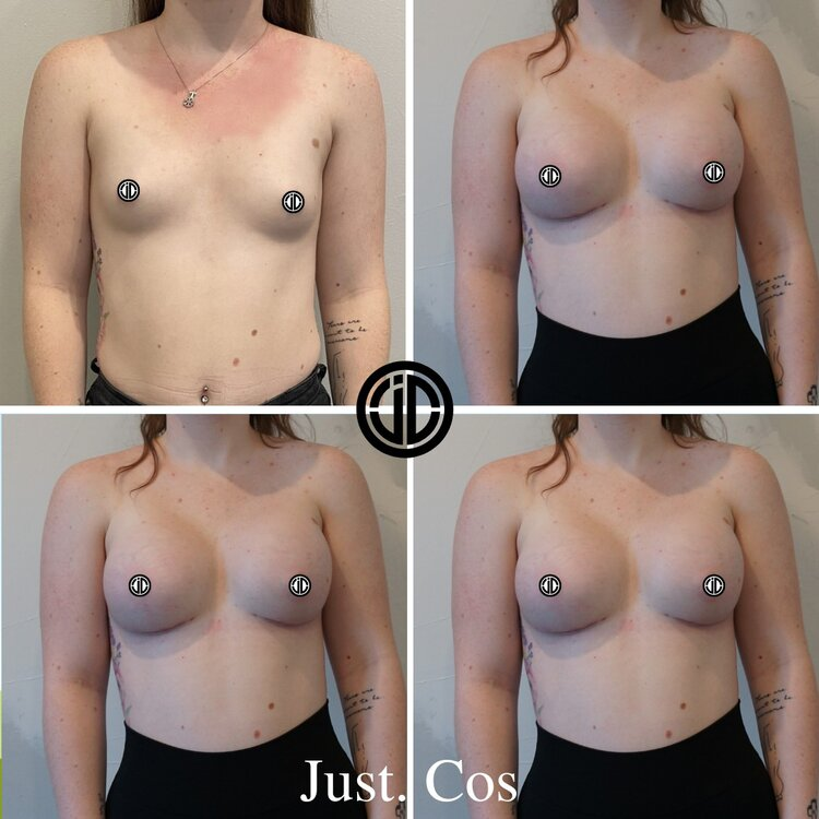 , Before & After Gallery, Breast Implants Perth, WA | Just Cos